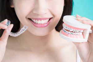 braces vs aligners