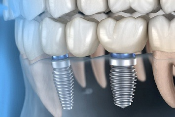 computer model of dental implants